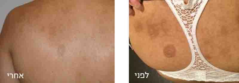 טיפול בפיגמנטציה בעור
