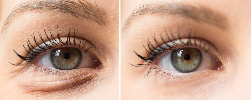 טיפול בכהות מתחת לעיניים הלגה רקנטי