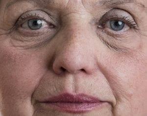 שקעים מתחת לעיניים הלגה רקנטי