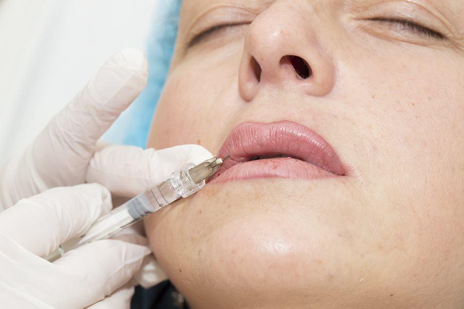 לא חייבים בוטוקס – הכירו את השיטה הטבעית: עיבוי ועיצוב שפתיים בעזרת חומצה היאלורונית