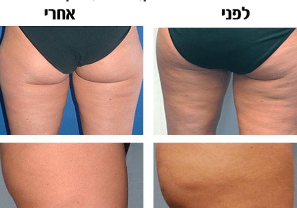בטן שטוחה ובלי צלוליט בירכיים ובישבן – אפשרי?