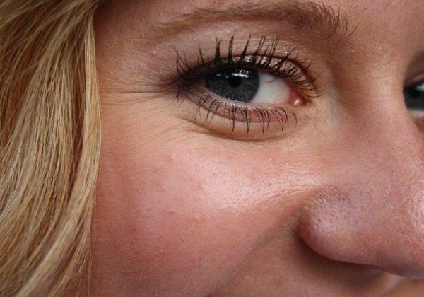 טיפול נגד קמטים- מה ההבדל בין ניתוח פנים להזרקות?