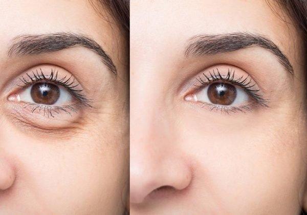טשטוש שקיות מתחת לעיניים ללא ניתוח