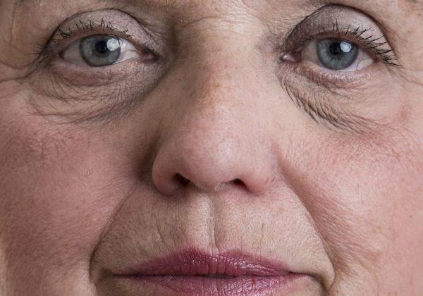 שקעים מתחת לעיניים – למה זה קורה ואיך מטפלים?