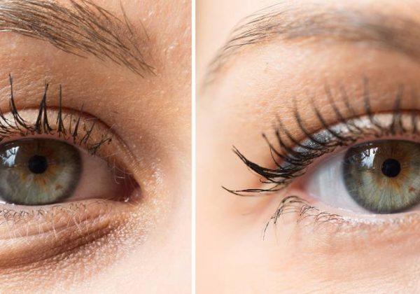 """אל תראו שחורות: כך תטפלו ב""""שקיות"""" מתחת לעיניים"""