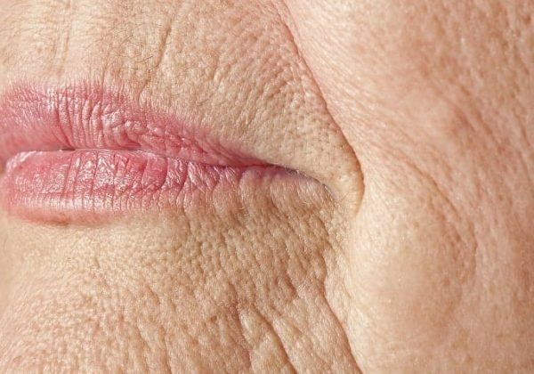 קמטי העישון מפריעים לך? קבלי טיפול מיצוק העור במכון הלגה ושימי סוף למטרד